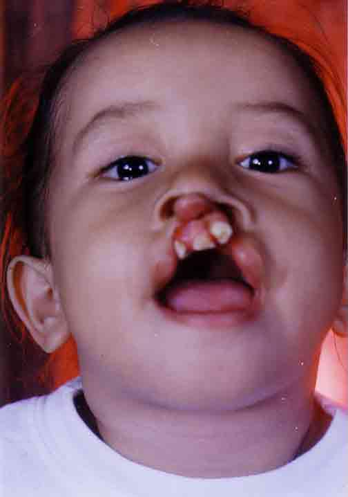 A child with cleft lip